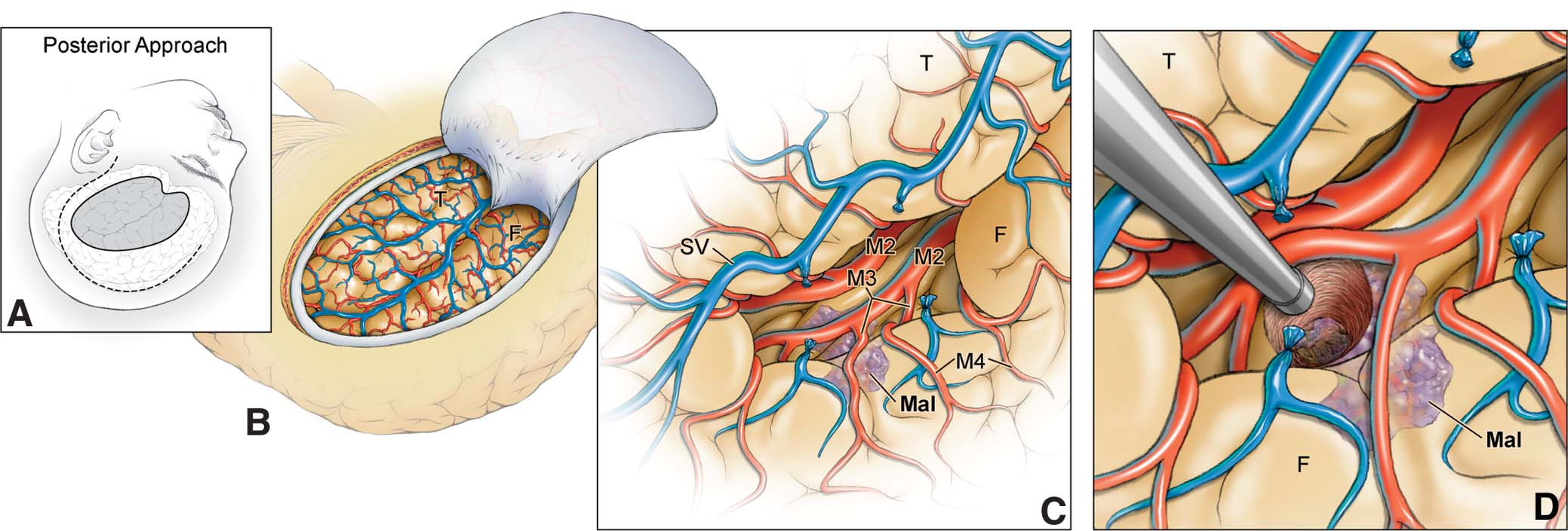 transsylvian_approach [Operative Neurosurgery]