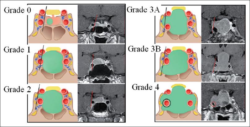 knosp_grade [Operative Neurosurgery]