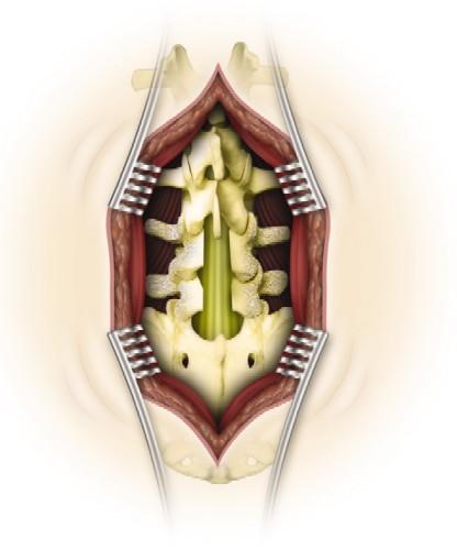 Lumbar Laminectomy Operative Neurosurgery