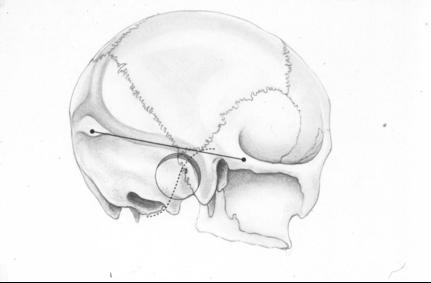 retrosigmoid_craniotomy [Operative Neurosurgery]