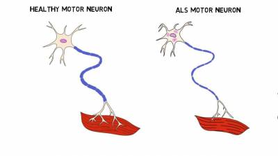 Amyotrophic lateral sclerosis treatment - Neurosurgery