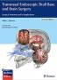 transnasal_endoscopic_skull_base_and_brain_surgery_surgical_anatomy_and_its_applications.jpg