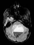 intracranial_ependymoma_mri_t2.jpg