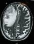 glioblastoma_multiforme_magnetic_resonance_imaging_b.jpg