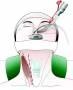 high_cervical_anterolateral_retropharyngeal_approach_skin_incision.jpg