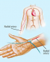 transradial_artery_approach.png