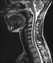 cervical_mri_scan.png