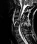 cervical_traumatic_spinal_cord_injury.jpg