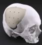 cranioplasty_materials.jpg