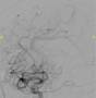 middle_cerebral_artery_m4_segment_aneurysm_angiography.jpg