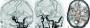 four_dimensional_computed_tomography_angiography.jpg
