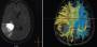 diffusion_tensor_imaging_for_brain_tumor_resection.jpg