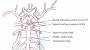 basilar_artery_aneurysm_classification.jpg