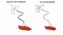 amyotrophic_lateral_sclerosis.jpg