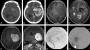 primary_intracranial_solitary_fibrous_tumor.jpg