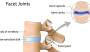 facet-joint.jpg