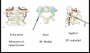c2_pedicle_screw_placement.png