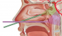 endoscopic_transnasal_transclival_approach.png