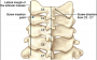 cervical_pedicle_screw_placement.png