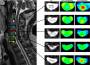 diffusion_tensor_imaging_for_degenerative_cervical_myelopathy.png