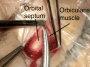 transpalpebral_orbitofrontal_approach_1
