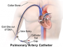 pulmonary_artery_catheter.png