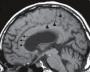 cingulate_sulcus_sign.png