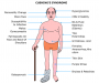 cushingssyndrome.png