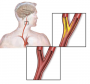 common_carotid_artery_occlusion.png