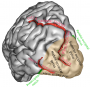 occipital_lobe.png