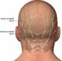 occipital_neuralgia.jpg