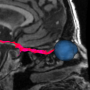 cranial_nerve_tractography.png