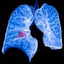 non_small_cell_lung_cancer.jpg