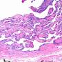 intravascular_papillary_endothelial_hyperplasia.jpg